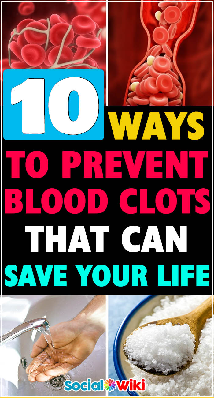 10 Ways to Prevent Blood Clots That Can Save Your Life 1