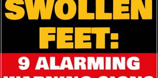 Swollen feet: 9 alarming warning signs you should never ignore 1