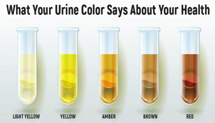 What The Colour Of Your Urine Can Say About Your Health
